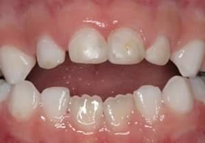 Πιπίλα και θηλασμός δαχτύλου. Πως μπορούν να επηρεάσουν τα δόντια και τι μπορούμε να κάνουμε για να βοηθήσουμε το παιδί να σταματήσει;